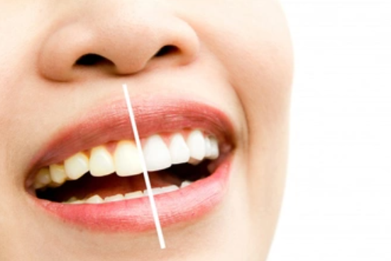 Teeth to Yellow and How to Avoid It